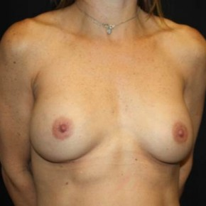 Before Photo - Breast Revision - Case #14278 - Implant Exchange - 43 year old female - Oblique View