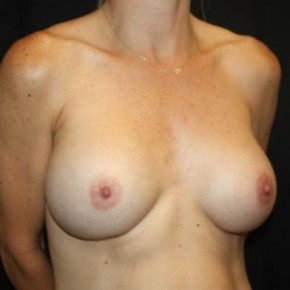 After Photo - Breast Revision - Case #14278 - Implant Exchange - 43 year old female - Oblique View