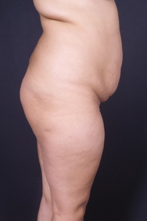 Before Photo - Fat Transfer - Case #14289 - Liposuction of the Abdomen and Hips with Fat Transfer to Buttocks - Lateral View