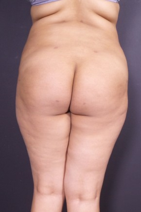 After Photo - Fat Transfer - Case #14289 - Liposuction of the Abdomen and Hips with Fat Transfer to Buttocks - Posterior View