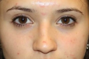 Before Photo - Nose Surgery - Case #14310 - Rhinoplasty - 17 year old female - Frontal View