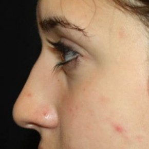 Before Photo - Nose Surgery - Case #14310 - Rhinoplasty - 17 year old female - Lateral View