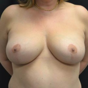 After Photo - Breast Lift - Case #14314 - Breast lift and reduction - 47 year old female - Frontal View