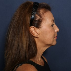Before Photo - Facelift - Case #14315 - 62 years old female - 7 Months Post-Op - Lateral View