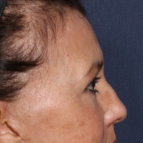 After Photo - Eyelid Surgery - Case #14316 - 62 years old female - 7 Months Post-Op  - Lateral View