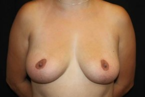 After Photo - Breast Lift - Case #14320 - Breast Lift - 27 year old female - Frontal View