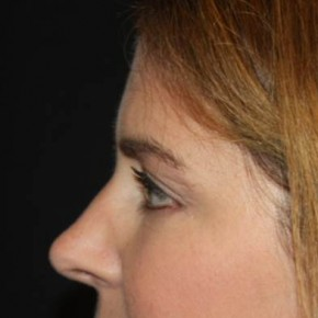 After Photo - Eyelid Surgery - Case #14334 - Blepharoplasty and Browlift - 45 year old female - Lateral View