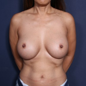 After Photo - Breast Augmentation - Case #14337 - 49 Years Old Female - Frontal View