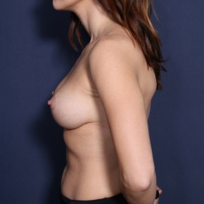 After Photo - Breast Lift - Case #14338 - 31 years old female  - Lateral View