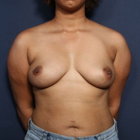 Before Photo - Breast Augmentation - Case #14339 - 28 Years old female - Frontal View