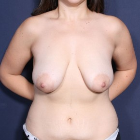 Before Photo - Breast Lift - Case #14342 - 25 Years Old Female - Frontal View