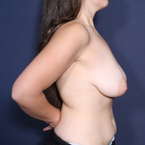 Before Photo - Breast Lift - Case #14342 - 25 Years Old Female - Lateral View