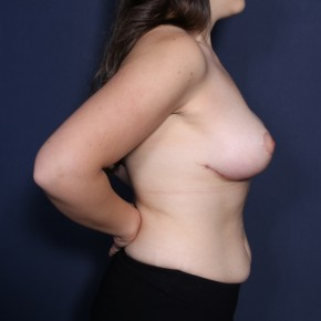 After Photo - Breast Lift - Case #14342 - 25 Years Old Female - Lateral View