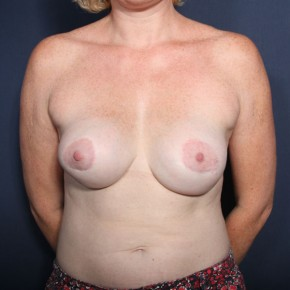 Before Photo - Breast Revision - Case #14343 - 43 years old female  - Frontal View