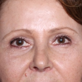 After Photo - Eyelid Surgery - Case #14345 - 59 years old female  - Frontal View