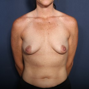 Before Photo - Breast Lift - Case #14346 - 35 years old female - 6 Months Post-Op  - Frontal View