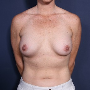 After Photo - Breast Lift - Case #14346 - 35 years old female - 6 Months Post-Op  - Frontal View