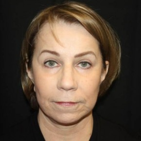 After Photo - Facelift - Case #14492 - Facelift/Facial Rejuvenation - 64 year old female - Frontal View