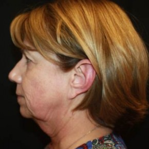 Before Photo - Facelift - Case #14492 - Facelift/Facial Rejuvenation - 64 year old female - Lateral View