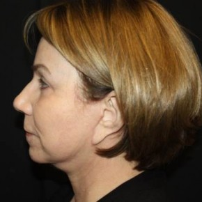 After Photo - Facelift - Case #14492 - Facelift/Facial Rejuvenation - 64 year old female - Lateral View