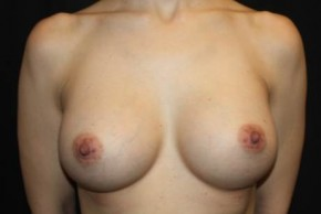 After Photo - Breast Augmentation - Case #14500 - Breast Augmentation - 39 year old female - Frontal View