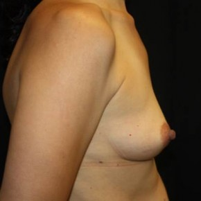 Before Photo - Breast Augmentation - Case #14500 - Breast Augmentation - 39 year old female - Lateral View