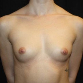 Before Photo - Breast Augmentation - Case #14501 - Breast Augmentation - 24 year old female - Frontal View