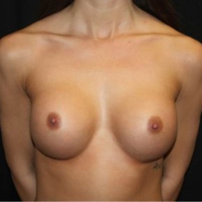After Photo - Breast Augmentation - Case #14501 - Breast Augmentation - 24 year old female - Frontal View