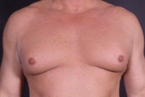 After Photo - Gynecomastia - Case #14512 - Bilateral Nipple Reduction - Frontal View