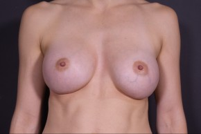 After Photo - Breast Augmentation - Case #14513 - Breast Augmentation with Round Silicone Implants - Frontal View