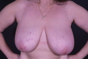 Before Photo - Breast Lift - Case #14515 - Bilateral Wise-pattern Mastopexy - Frontal View