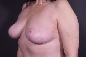 After Photo - Breast Lift - Case #14515 - Bilateral Wise-pattern Mastopexy - Oblique View