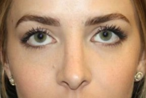 After Photo - Nose Surgery - Case #14527 - Rhinoplasty - 20 year old female - Frontal View