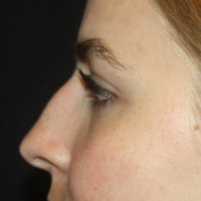 Before Photo - Nose Surgery - Case #14527 - Rhinoplasty - 20 year old female - Lateral View