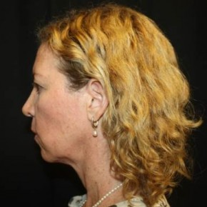 Before Photo - Facelift - Case #14528 - Facelift and Neck Lift - 49 year old female - Lateral View