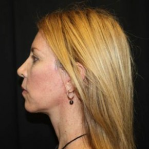 After Photo - Facelift - Case #14528 - Facelift and Neck Lift - 49 year old female - Lateral View