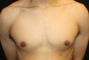 After Photo - Gynecomastia - Case #14529 - Gynecomastia - 17 year old male  - Frontal View