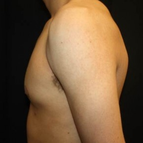 After Photo - Gynecomastia - Case #14529 - Gynecomastia - 17 year old male  - Lateral View