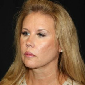 Before Photo - Facelift - Case #14535 - Facelift and Neck Lift - 54 year old female - Oblique View