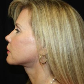 After Photo - Facelift - Case #14535 - Facelift and Neck Lift - 54 year old female - Lateral View