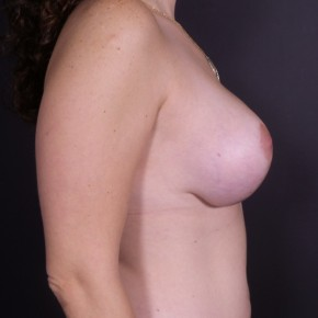 After Photo - Breast Augmentation - Case #14562 - Bilateral Breast Augmentation with Vertical Mastopexy - Lateral View