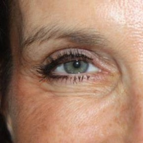 After Photo - Botulinum Toxin - Case #14571 - Botox (Glabella & Crows Feet) - 54 year old female. - Lateral View