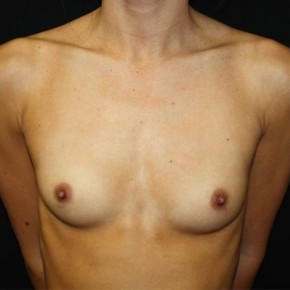 Before Photo - Breast Augmentation - Case #14572 - Breast Augmentation - 27 year old female - Frontal View