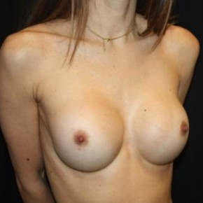 After Photo - Breast Augmentation - Case #14572 - Breast Augmentation - 27 year old female - Oblique View