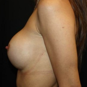 After Photo - Breast Augmentation - Case #14572 - Breast Augmentation - 27 year old female - Lateral View