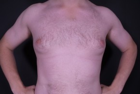Before Photo - Gynecomastia - Case #14595 - Liposuction Gynecomastia - Frontal View