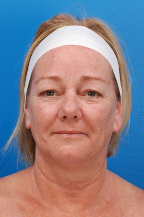 Before Photo - Facial Rejuvenation - Case #14609 - 61 y/o woman after Laser Liposuction to the neck, skin tightening, eyelid surgery, & fat grafting to the face - Frontal View