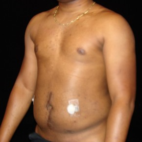 Before Photo - Liposuction - Case #14626 - Abdominal Etching - Oblique View