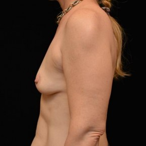 Before Photo - Breast Augmentation - Case #14628 - Oblique View