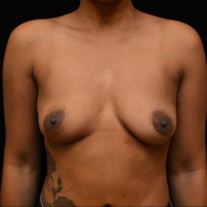 Before Photo - Breast Augmentation - Case #14630 - Frontal View